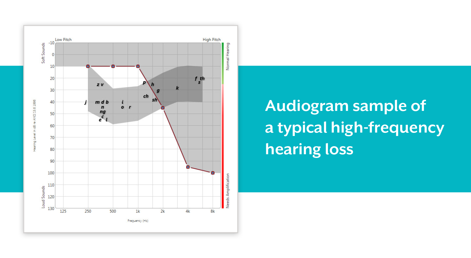 Mar_18_High_Frequency_Hearing_Loss